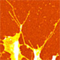 Tracking Cells Footprints Modern Microscopy Methods Visualize Bio Nanotubes
