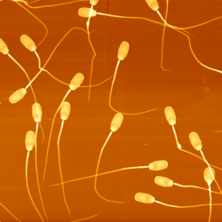 High-resolution imaging on sperm